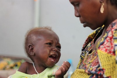 A mother watches her baby at a hospital in Cameroon's Far North Region where many children under five have been afflicted by severe malnutrition. Strengthening healthcare is a key recommendation in a report by the President's Advisory Council on Doing Business in Africa.