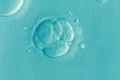 Infertility affects women and men equally, experts say. (file photo).