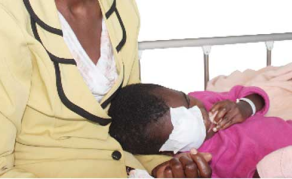 Worrying Eye Cancer Statistics Amongst Children in Tanzania