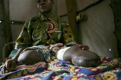 Une Congolaise qui a perdu l'usage de ses jambes à cause des pratiques de torture
