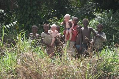 Albino twins.