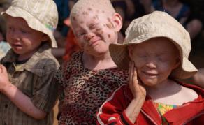 La police a favorisé le meurtre de personnes albinos au Malawi